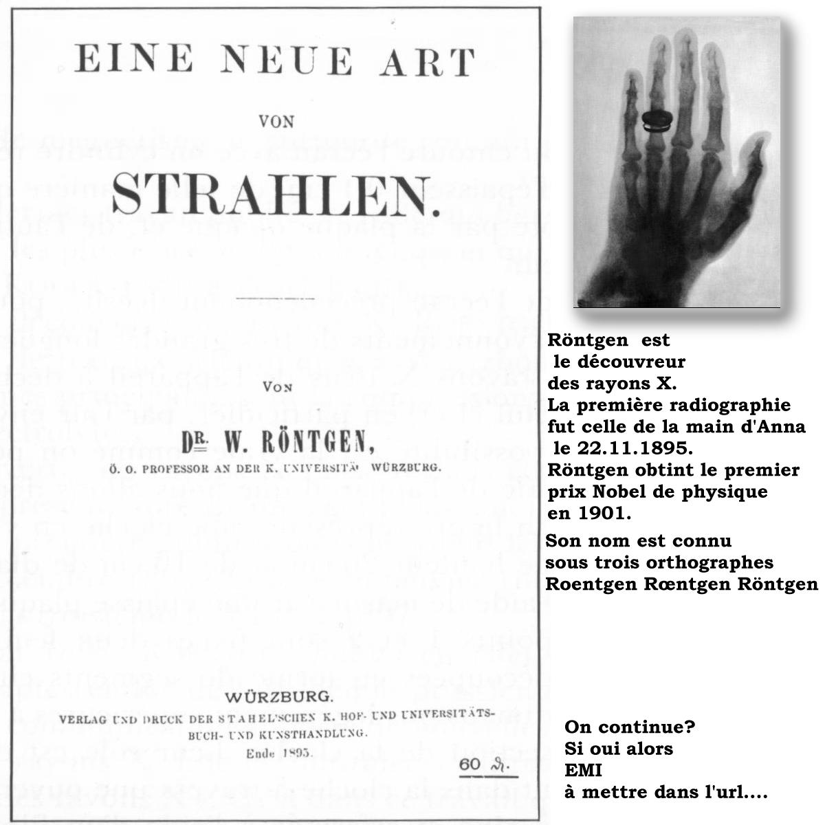 http://www.prise2tete.fr/upload/papyricko-rontgen.jpg